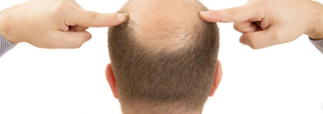 تحفيز نمو الشعر ومعالجة الصلع